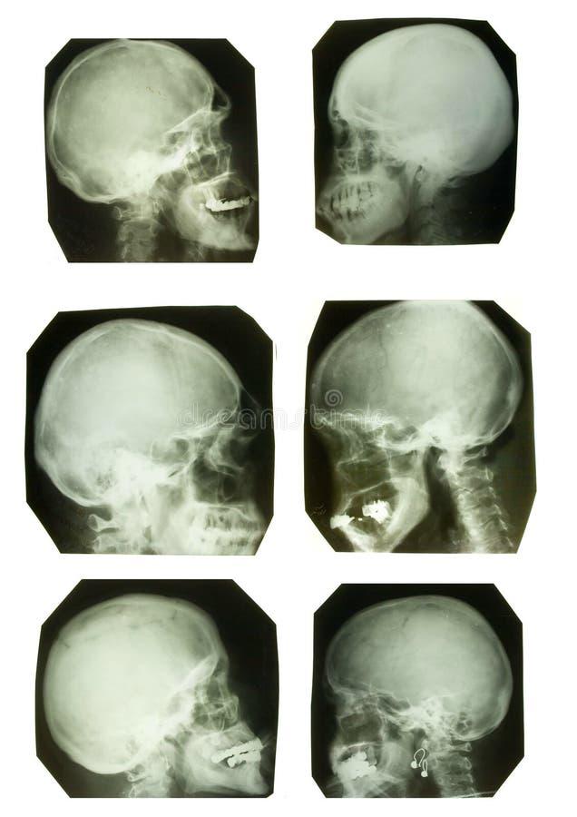 Cuadros de la radiografía foto de archivo