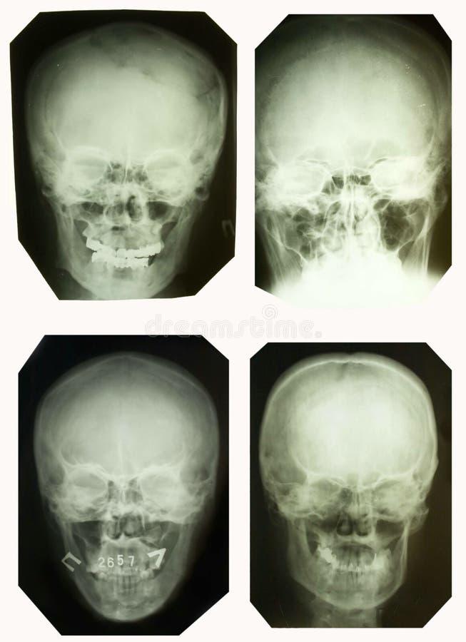 Cuadros de la radiografía fotografía de archivo