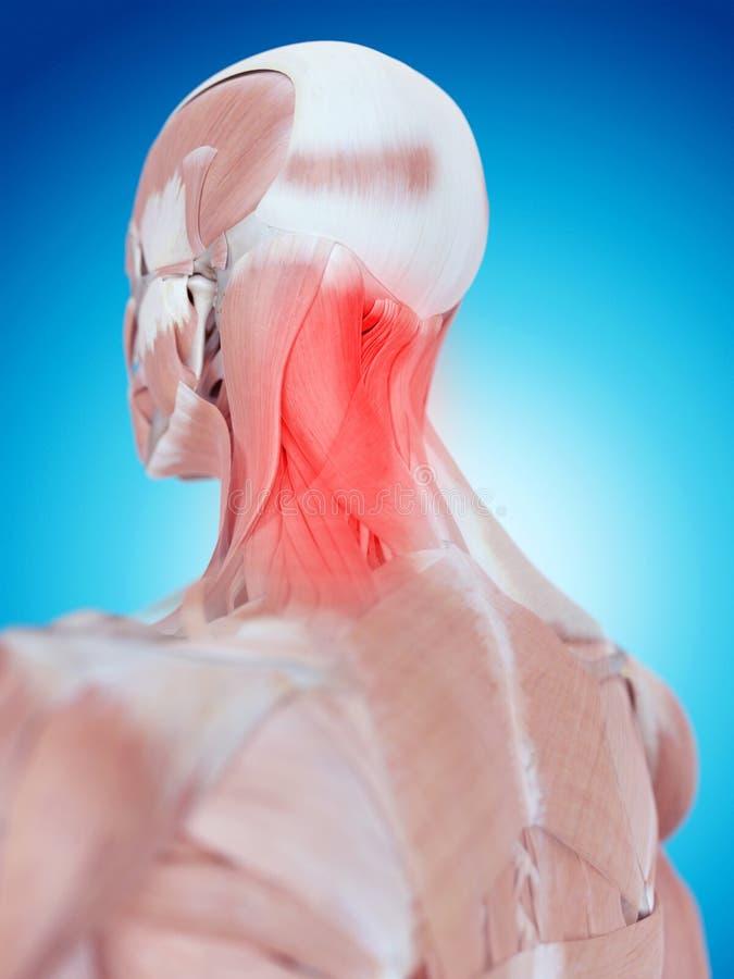 Cuello doloroso ilustración del vector