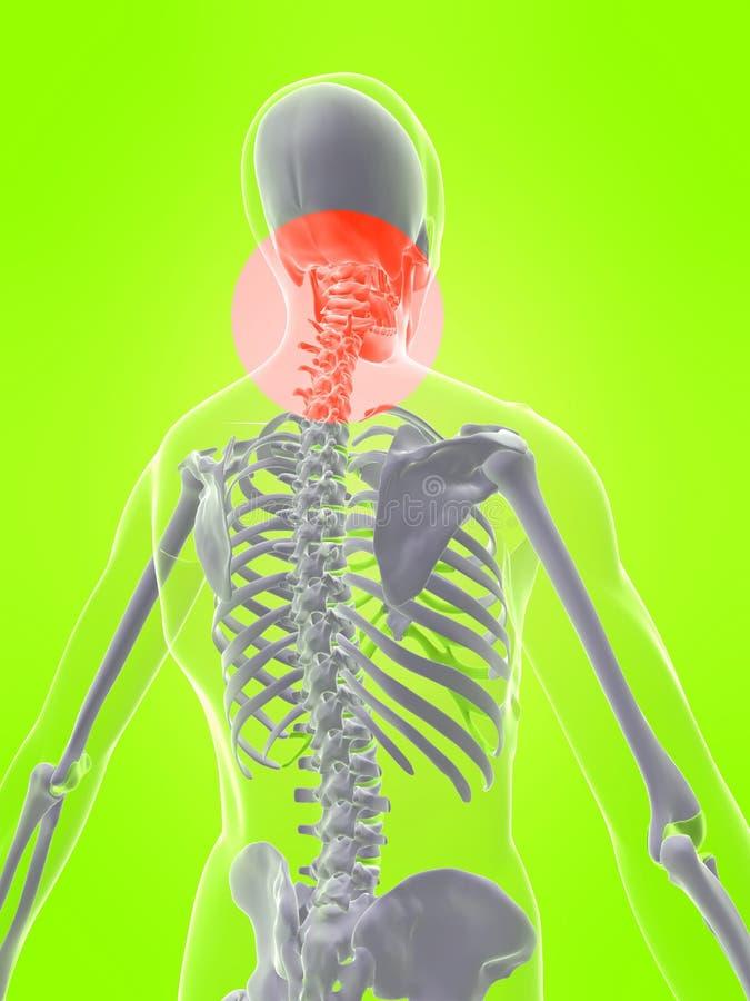Cuello humano con dolor ilustración del vector