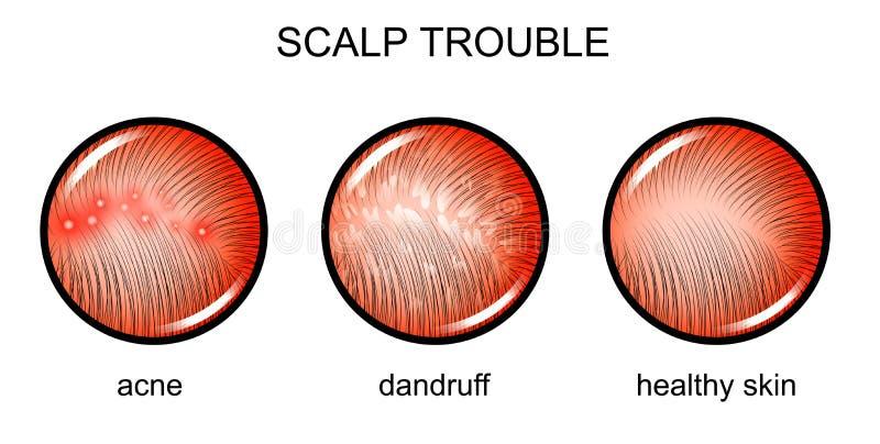 Cuero cabelludo preocupado dermatología libre illustration
