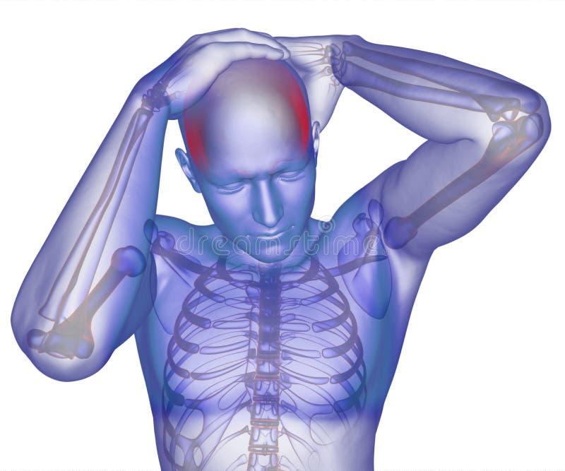 Cuerpo con dolor de cabeza visible stock de ilustración
