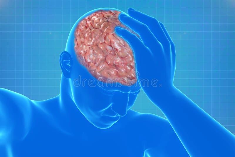 Cuerpo con dolor de cabeza visible ilustración del vector