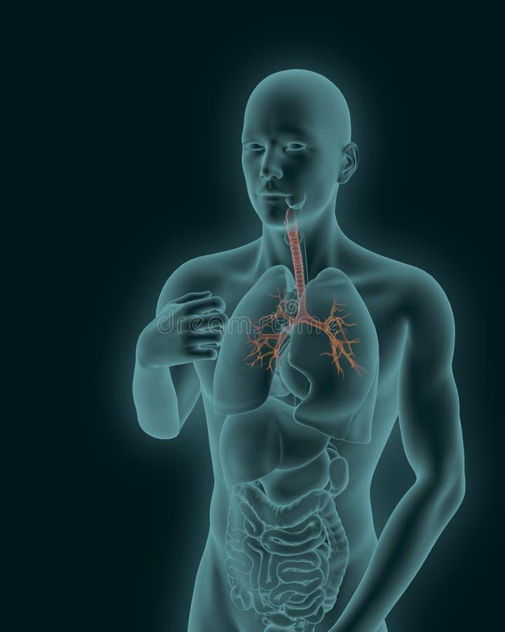 Cuerpo humano con la tráquea inflamada visible y el árbol bronquial stock de ilustración
