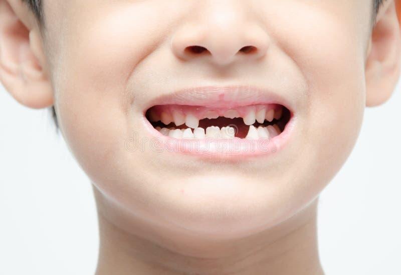 Cuidado dental desdentado sonriente de la demostración del niño pequeño imagenes de archivo