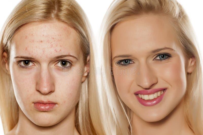 Cuidados com a pele - tratamento cosmético imagens de stock royalty free