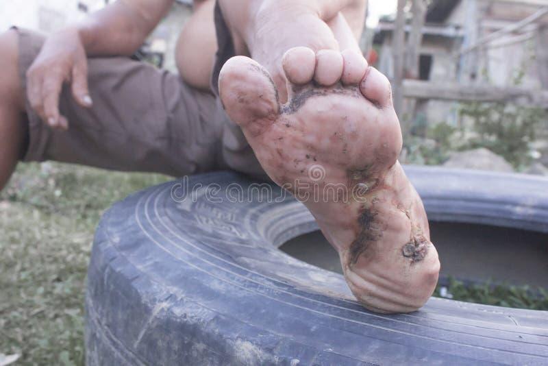 Cukrzyca na nodze z brudnym bólem rany i biednymi ludźmi zdjęcie stock