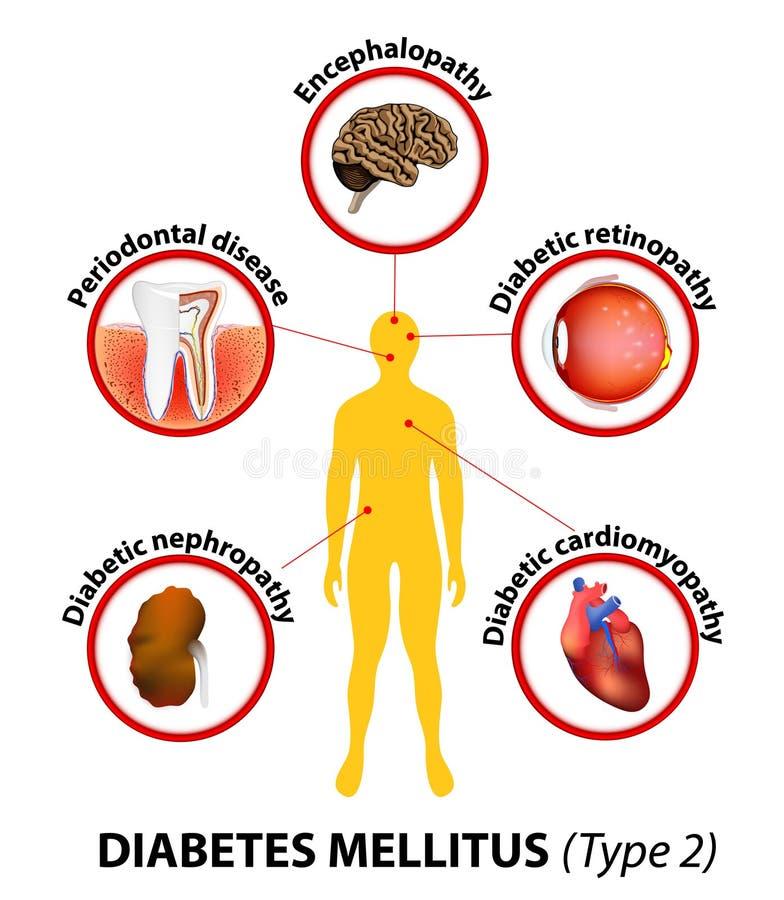 Cukrzyce mellitus długookresowe komplikacje ilustracja wektor