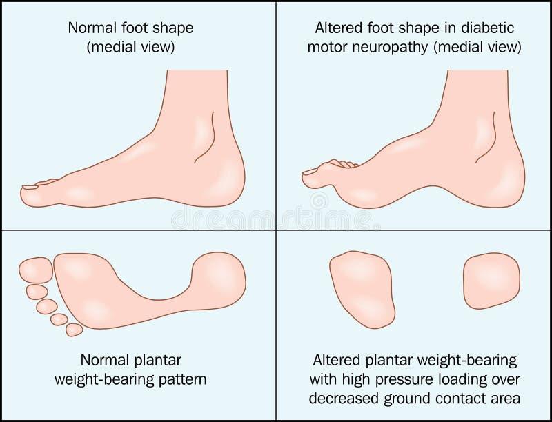 cukrzycowa stopa ilustracji