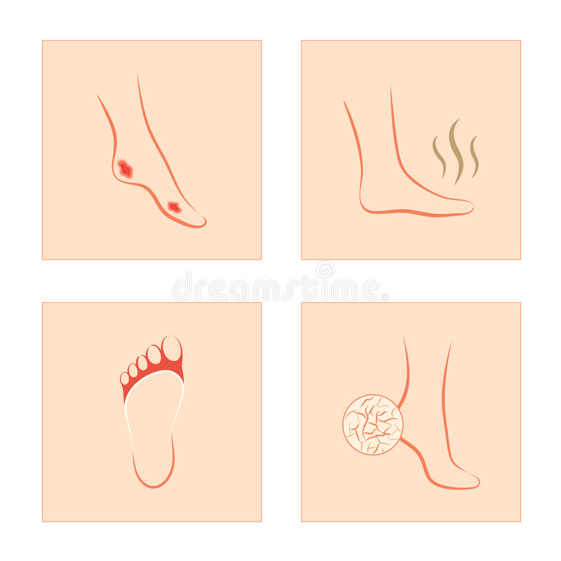 Cukrzycowy wrzód, krakingowa pięta, grzybowa infekcja, śmierdzaca stopa ilustracji