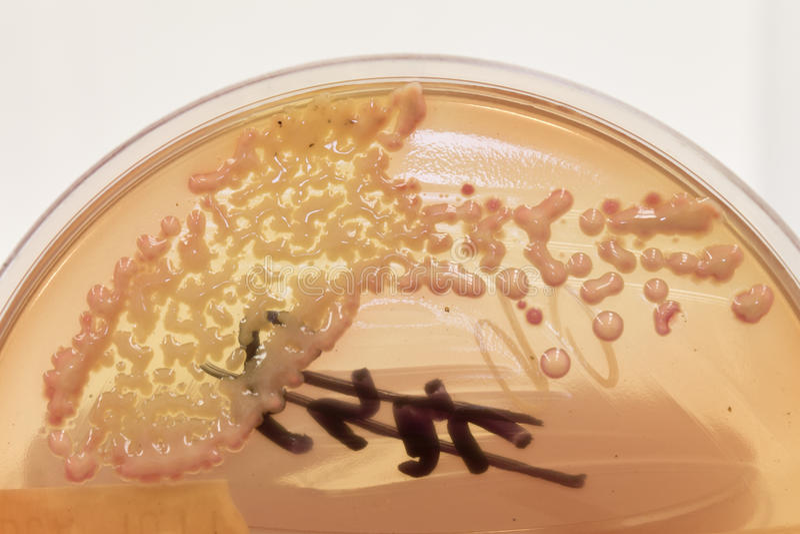 Culturas bacterianas no ágar fotografia de stock