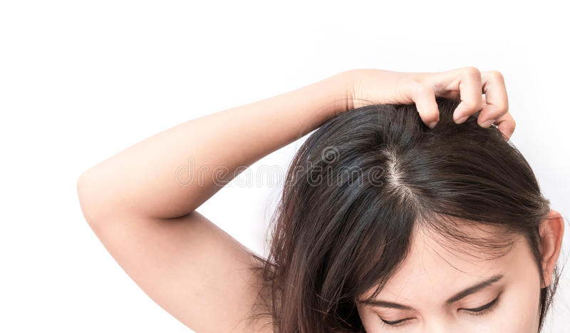 Cuoio capelluto che prude della mano della donna del primo piano, cura di capelli immagine stock libera da diritti