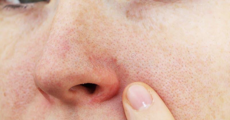 Cuperosis na nosie młoda kobieta Trądzik na twarzy Egzamin lekarką obrazy royalty free