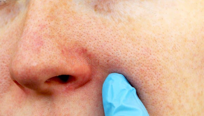 Cuperosis na nosie młoda kobieta Trądzik na twarzy Egzamin lekarką obraz stock