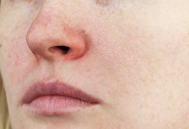 Cuperosis no nariz de uma jovem mulher Acne na cara Exame por um doutor fotografia de stock royalty free