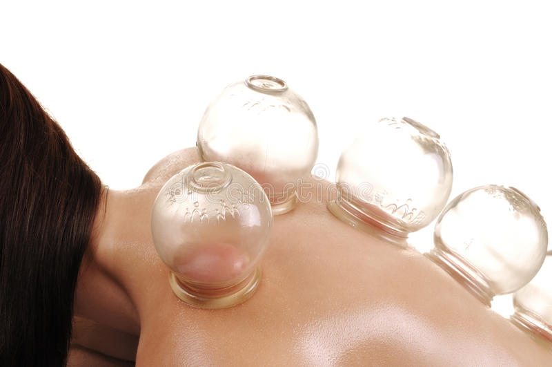 Cupping massage the back of a woman stock image