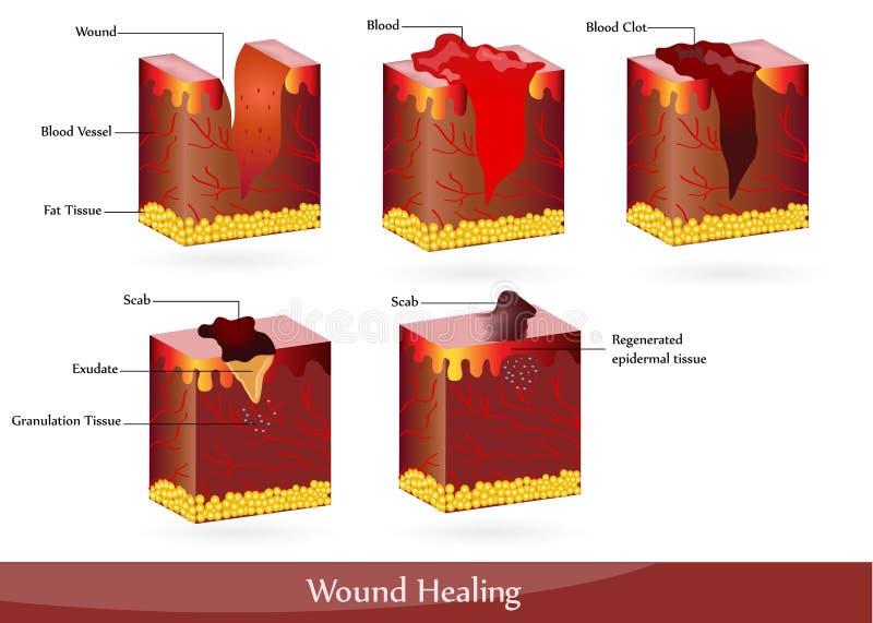 Cura de la herida stock de ilustración