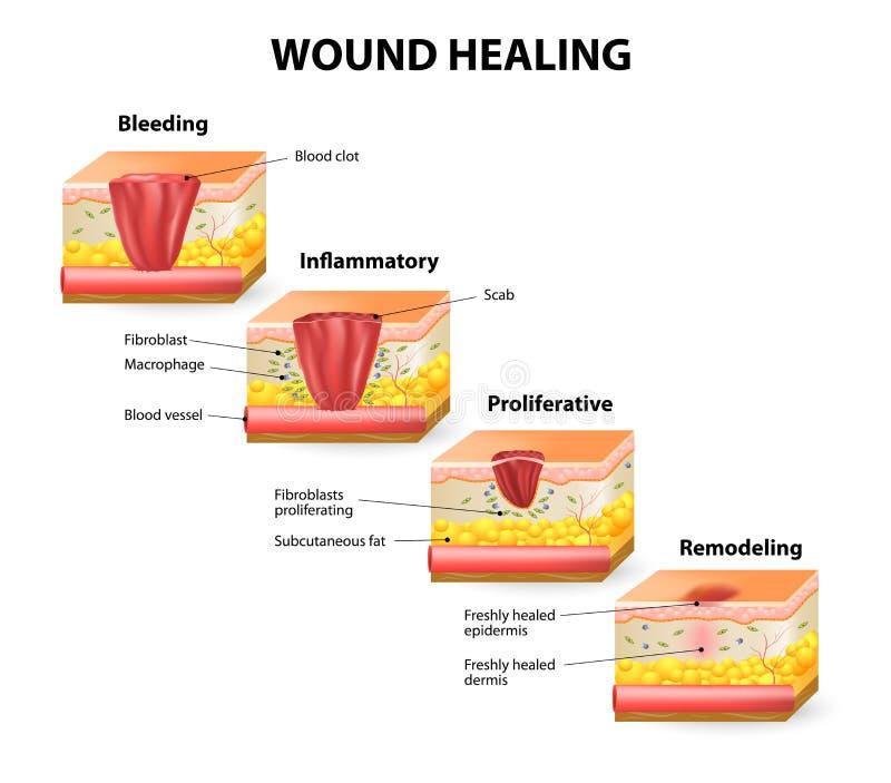 Cura de la herida ilustración del vector