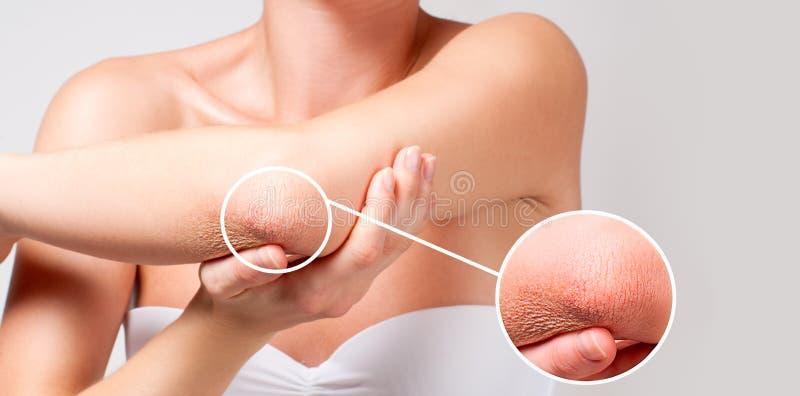 Cura del corpo La donna ha pelle asciutta sul gomito immagine stock libera da diritti