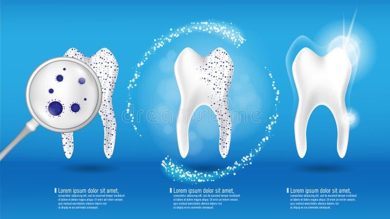 Cura orale e concetto dentario di salute Dente pulito e sporco brillante su fondo blu, processo eliminante del dente denti illustrazione di stock