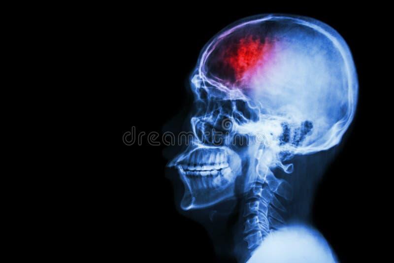 Curso (acidente celebral-vascular) Filme a lateral do crânio do raio X com curso e anule a área no lado esquerdo fotos de stock royalty free