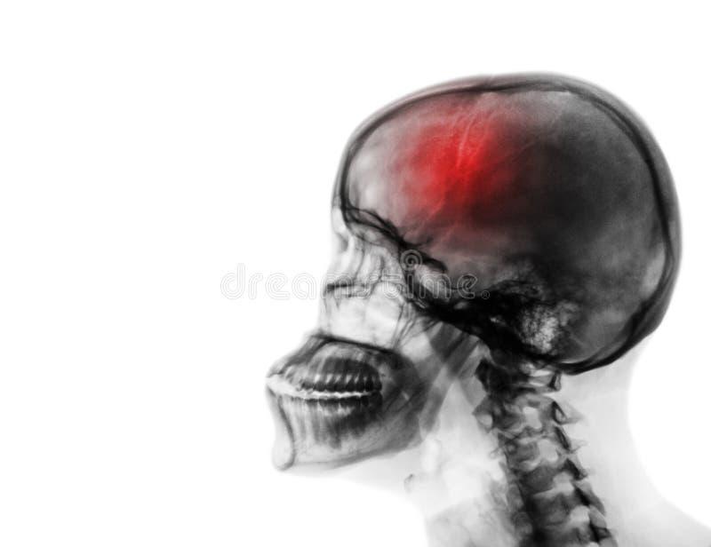 curso acidente celebral-vascular Filme o raio X do crânio humano e da espinha cervical imagens de stock