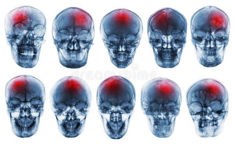 curso acidente celebral-vascular Grupo de crânio do raio X do filme imagem de stock royalty free