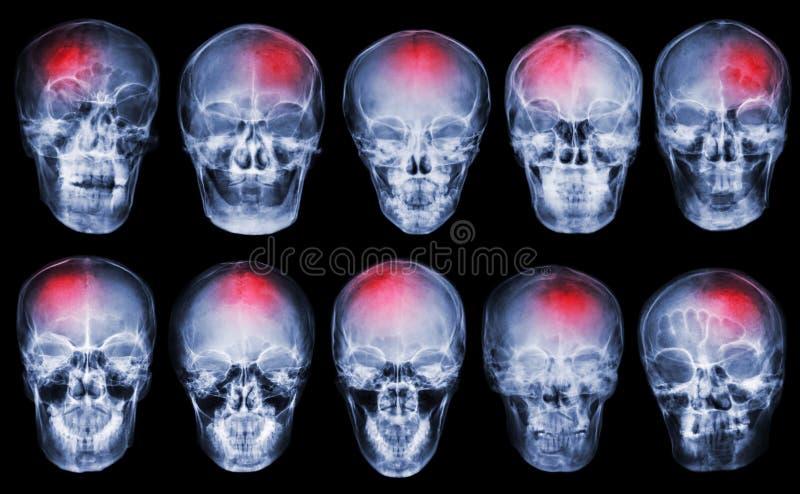 curso acidente celebral-vascular Grupo de crânio do raio X do filme fotos de stock