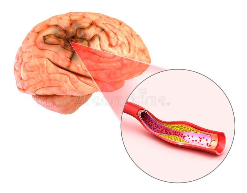 Curso do cérebro: ilustração 3d das embarcações do cérebro e das causas do curso ilustração stock