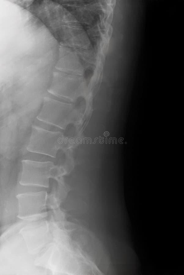Curva lombare laterale fotografie stock