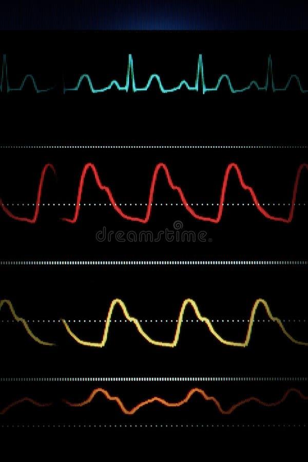 Curvas de ECG en el monitor de corazón fotos de archivo