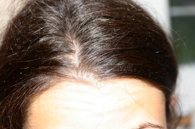 Curve hair parted on the head. Dandruff. Curve hair parted on the head. Dandruff royalty free stock photography