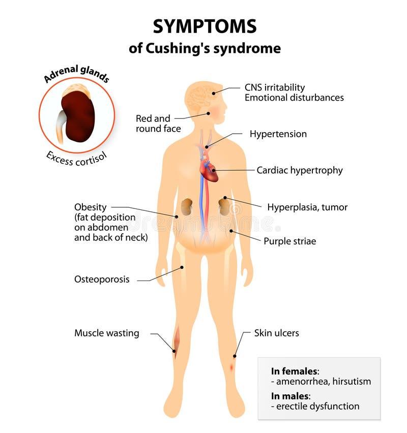 Cushing's sjukdom och syndrom royaltyfri illustrationer