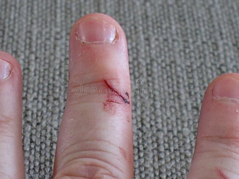 Cut finger wound healthcare related stock photo