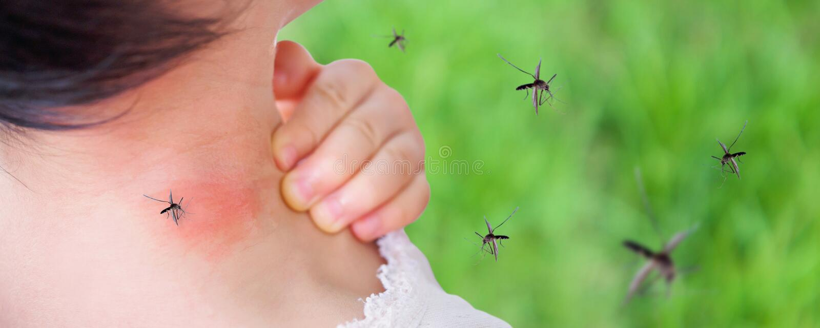 Cute asian baby girl has rash and allergy on neck skin from mosquito bite. And sucking blood while playing outdoor stock photo