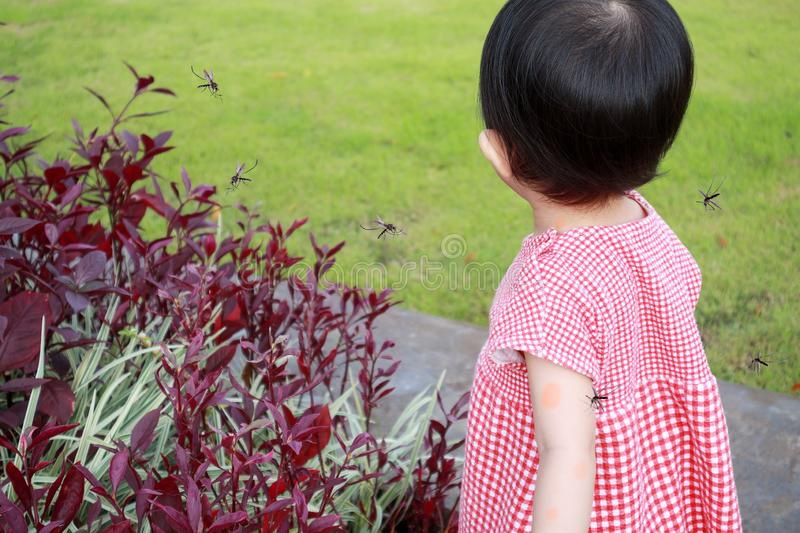 Cute asian baby girl has skin rash and allergy from mosquito bite. And sucking blood while playing outdoor royalty free stock images