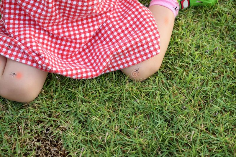Cute asian baby girl has skin rash and allergy from mosquito bite. And sucking blood while playing outdoor stock photo