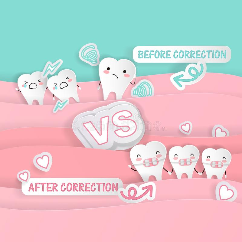 Cute cartoon tooth. With braces concept on the green background vector illustration
