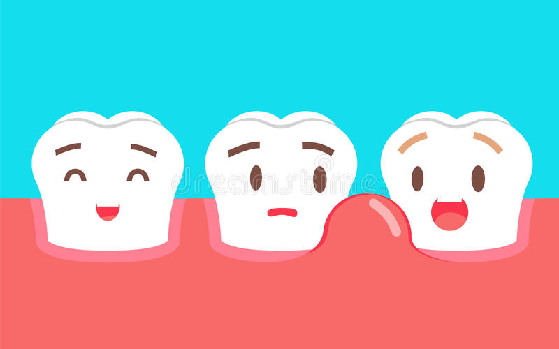 Cute cartoon tooth character with gum problem. Dental care concept, swollen gums or periodontal disease. royalty free illustration