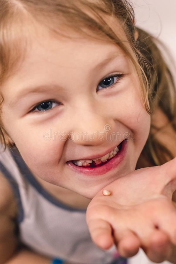 Cute little child has just lost the first milk tooth stock photo