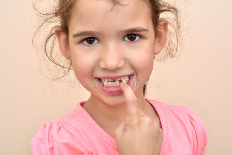 Young girl showing a missing tooth. Cute young girl showing a missing tooth with her index finger royalty free stock photo
