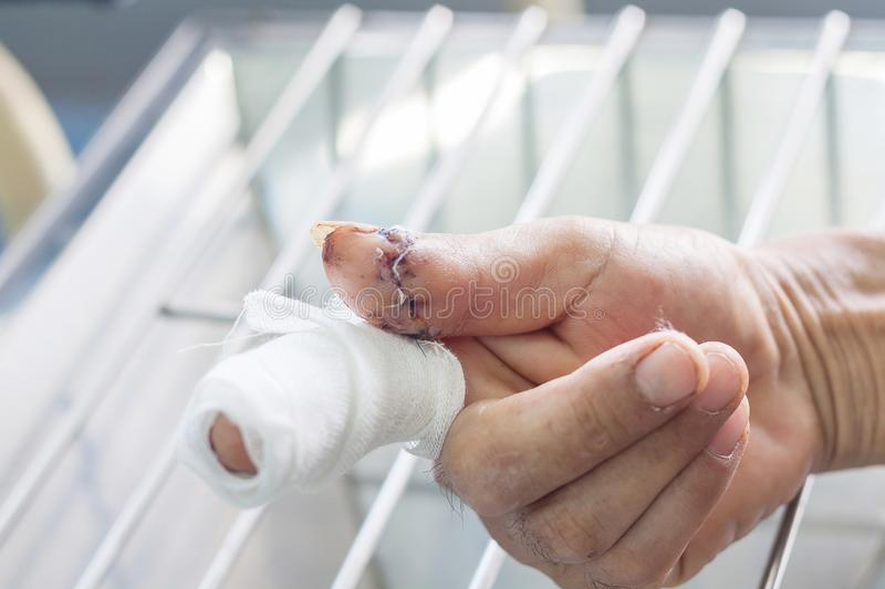 Cutting finger wound. Cutting wound finger ,closeup dressing stock photo