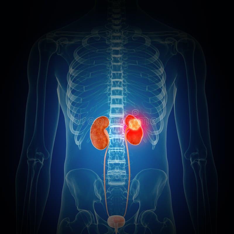 Cynaderki nowotwór ilustracja wektor