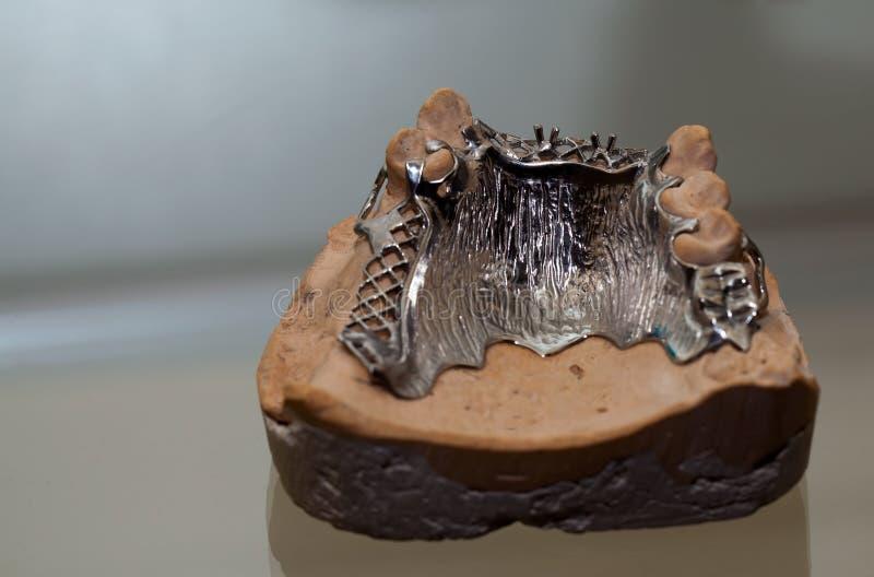 Cyrkon porcelany zębu talerz w dentysty sklepie obrazy stock