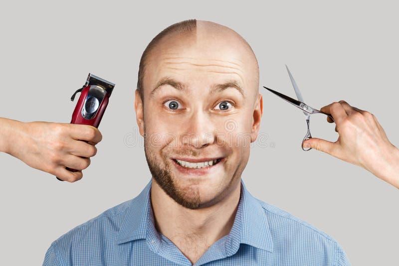 Człowiek przed i po wypadnięciu włosów, łysienie na tle z rękami, które derat golenie maszyny i nożyczki zdjęcia royalty free