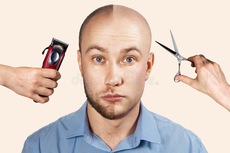 Człowiek przed i po wypadnięciu włosów, łysienie na tle z rękami, które derat golenie maszyny i nożyczki fotografia royalty free