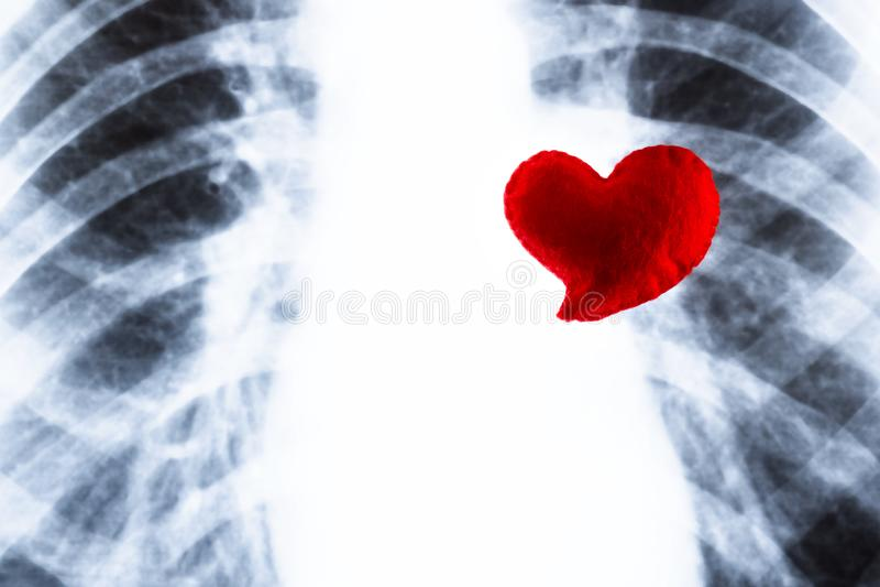 Czerwony serce na tle klatki piersiowej promieniowanie rentgenowskie Pojęcie atak serca, gruźlicy choroba Projekt na temacie phth fotografia stock