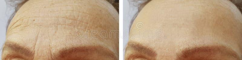 Czoło kobiet zmarszczenia przed i po procedurami fotografia royalty free