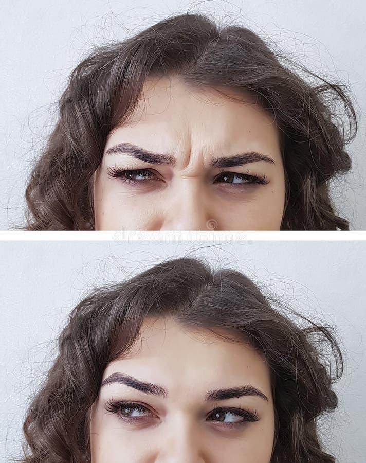 Czoło kobiety zmarszczenia before and after zdjęcia stock
