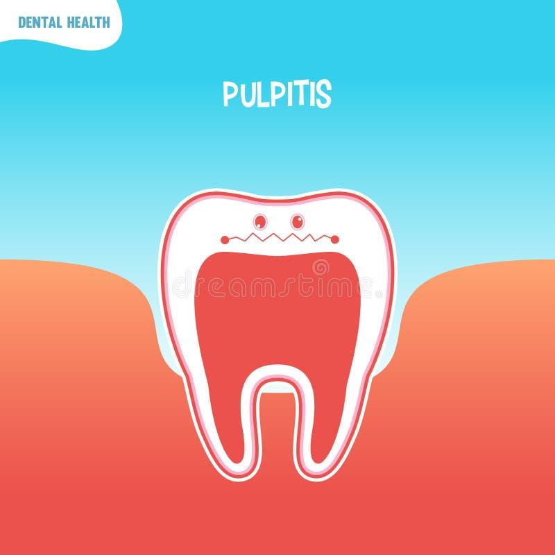 Dålig tandsymbol för tecknad film med pulpitis royaltyfri illustrationer